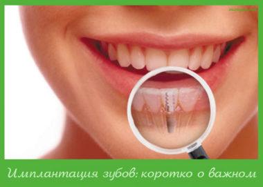 имплантация зубов виды
