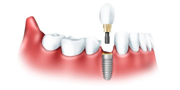 vozmozhnosti_implantacii_zubov