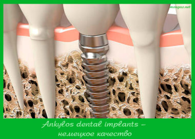 Ankylos dental implants