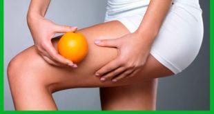 Симптомы и лечение целлюлита